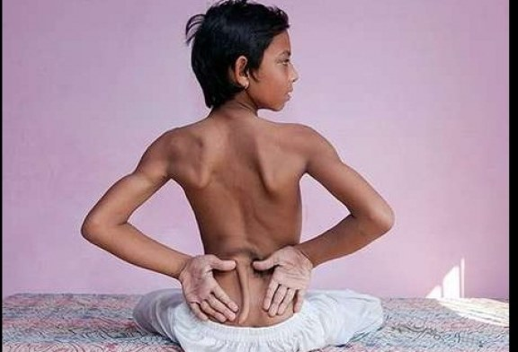 Indiano nasce com 'rabo' nas costas e é cultuado como deus