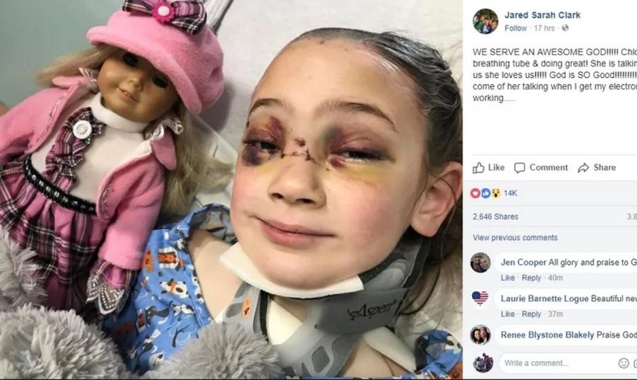 """Garota sai do coma após grande corrente de oração na internet: """"Servimos a um grande Deus"""""""